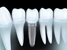 ivory.dental/dental-treatments/dental-implants/implants