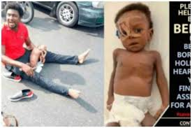 Baby Beniah Dies Today After Nigerians Raised N70m Needed For The Surgery