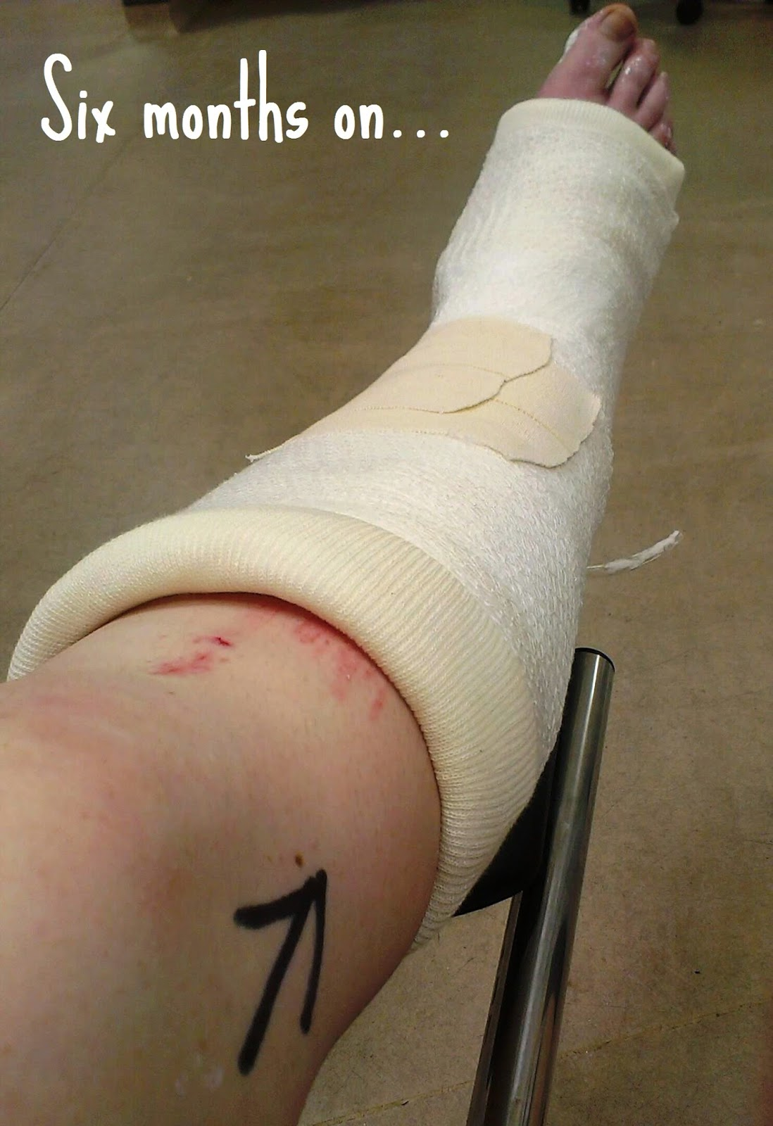 Recovering from a Trimalleolar Fracture - six months on