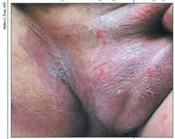 Obat Gatal Kulit Ampuh pada Buah Zakar dan Selangkangan