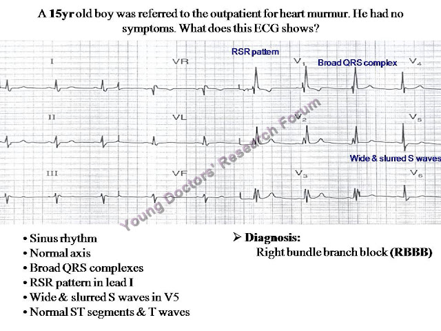 The Electrocardiography (ECG) Scenarios.ppt ~ YOUNG