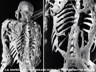 الصورة الحقيقية للهيكل العظمي لرجل مصاب بمتلازمة الرجل الحجري