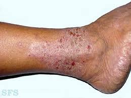 Kulit gatal dan bersisik di bagian kaki