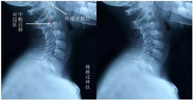 為什麼多數頭痛都緣於頸椎?(脖子僵硬、頸椎退變、脖子肌肉外傷)