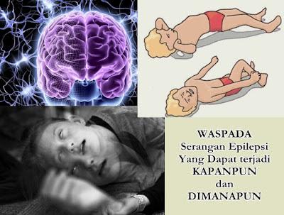 Obat Herbal Epilepsi Tanpa Efek Samping