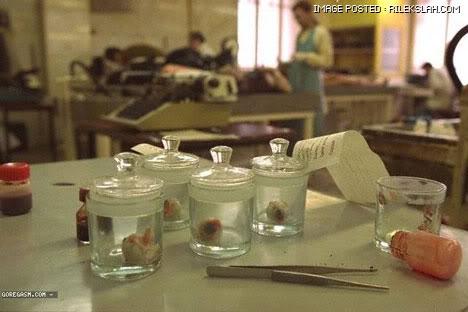 kilang-proses-organ-manusia-13.jpg