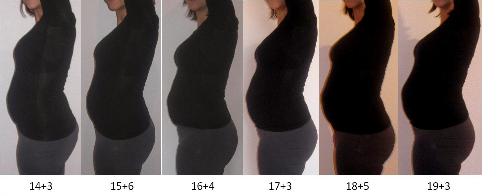 Harter Bauch Schwangerschaft 20 Ssw