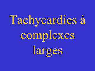 Tachycardies à complexes larges .pdf