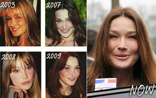 100 Plastic Surgery Carla Bruni Plastic Surgery Botox And Facelift Before And After Photos