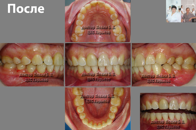 На иллюстрации 5 фото, всех проекций прикуса пациента после лечения