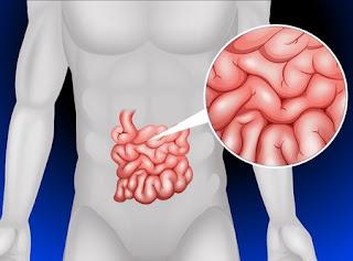 Malabsorbţie intestinala