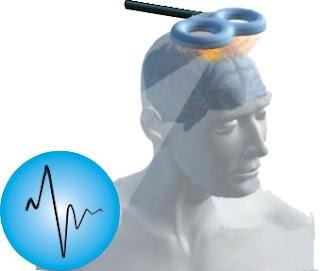 I metodi delle neuroscienze cognitive - TMS