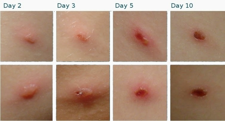 Kommon Kiditions: Chicken Pox (Varicella)Severe Adult Chicken Pox