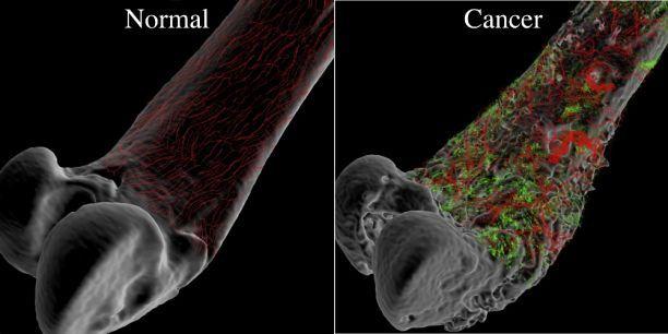 Four Signs of Bone Cancer Symptoms