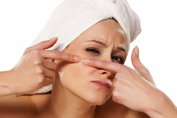 What Are The Best Acne Treatments?