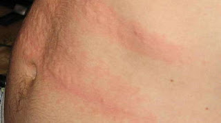 Hepatitis rashes on the patient's torso picture