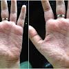 Adakah di Sini Yang Tangannya Gatel Seperti ini…? Sekarang Tidak Usah Sibuk Garuk Sana - Sini, Karena Cara menghilangkan Bintik-bintik Lepuhan Kecil Di Tangan ini Mudah Banget! SIMAK YUK