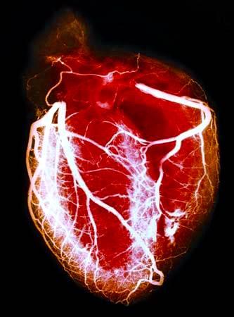 angiografía coronaria. Angiografía que muestra los detalles de las arterias coronarias del corazón