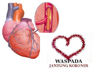 Solusi penyakit jantung koroner