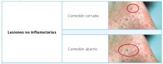 lesiones%2Bno%2Binflamatorias%2Bacne%25C