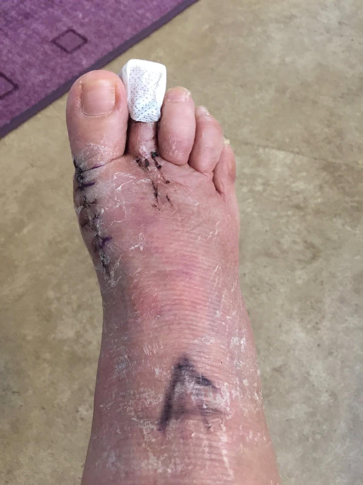 svullen fot efter knäoperation
