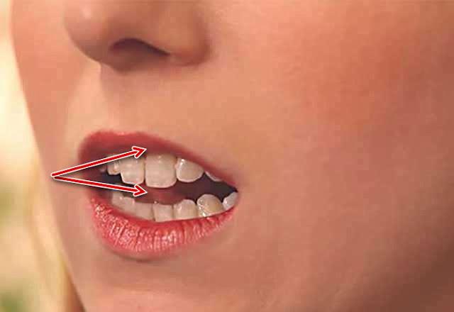 Dilinizin ucunu, ağzınızın iç kısmının en yüksek noktasına kadar değdirin