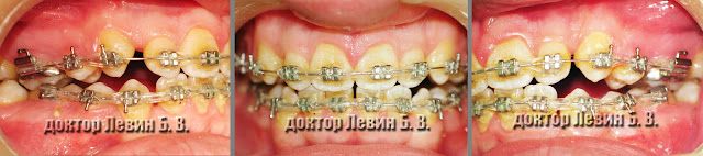 Три фото зубов характеризующие прикус пациента на 9 месяце лечения брекетами.