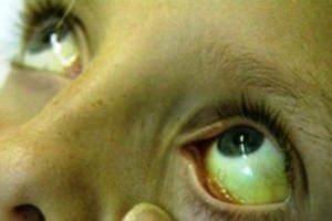 imagine ochi hepatita a