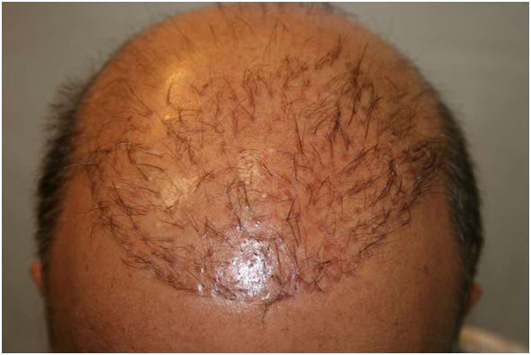 ¿Cómo saber cuál es la mejor clínica para hacerme un implante capilar?