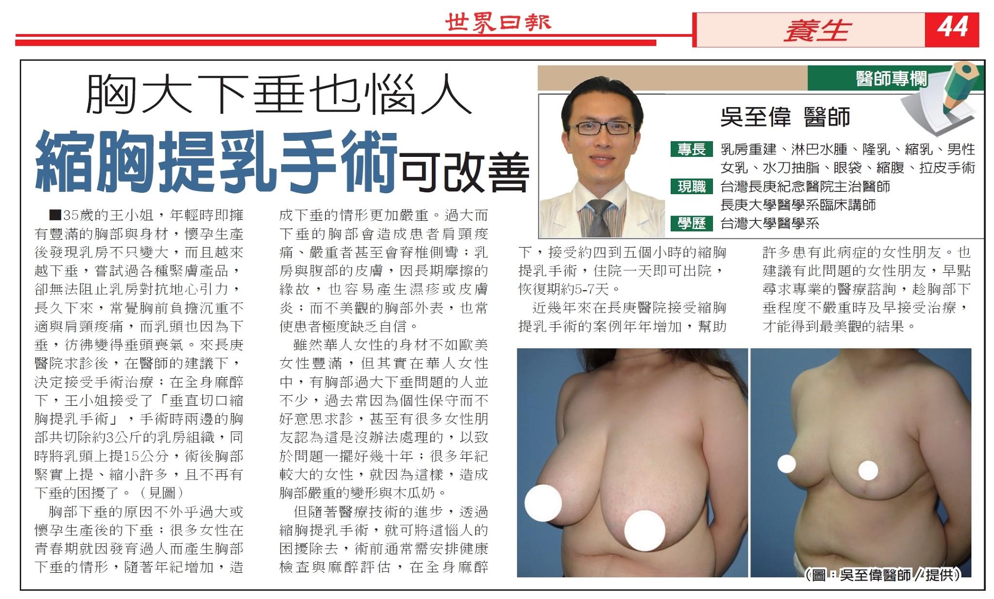 縮胸提乳手術改善胸大下垂