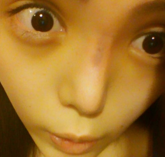 Kerana Sering Lakukan Pembedahan Plastik, Hidung Wanita Ini Rosak