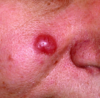 What Is Acrodermatitis Chronica Atrophicans with pictures