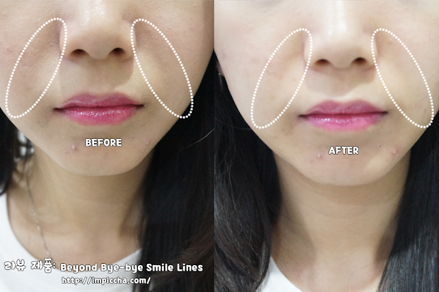 before and after use Beyond Bye-bye Smile Lines