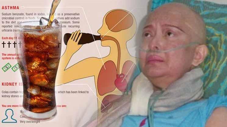 Ilmuwan Amerika Ternyata Sudah Mengingatkan, Minuman Kesukaan Yana Zein itu Pembawa Kanker Payudara!
