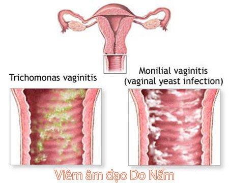 Phương pháp điều trị thuốc viêm âm đạo cho giới nữ