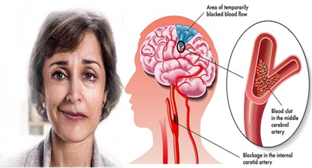 penyebab-stroke