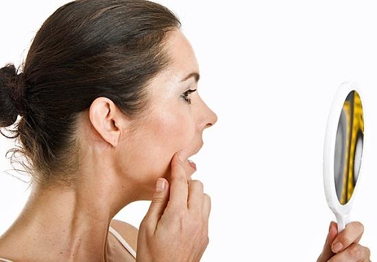 Trị bệnh nám da do sự thay đổi nội tiết tố