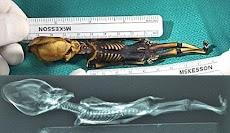 Mumi 'Alien' Atacama 15 Cm dengan Kepala Kerucut itu Manusia?