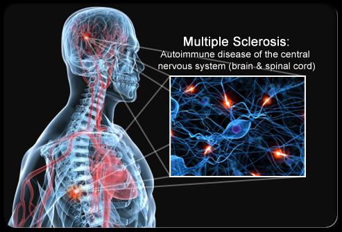 Рассеянный склероз смотреть