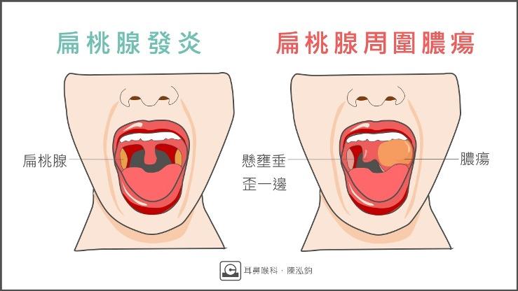 扁桃腺「周圍膿瘍」跟扁桃腺「化膿」