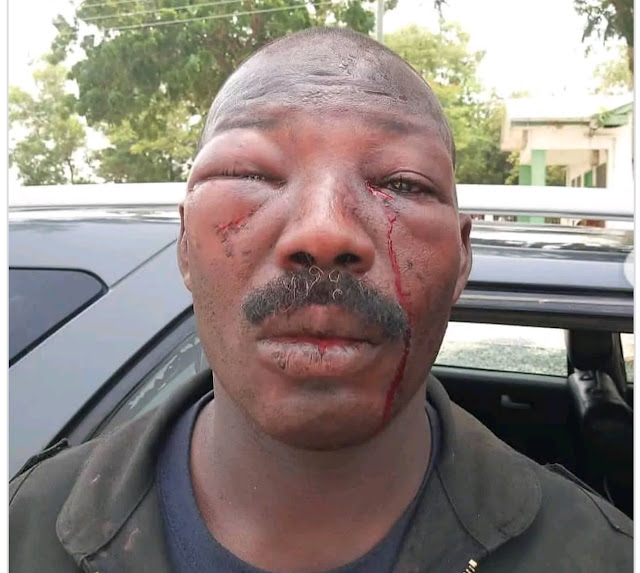 Police Officer Brutally Assaulted By Residents of Amasaman