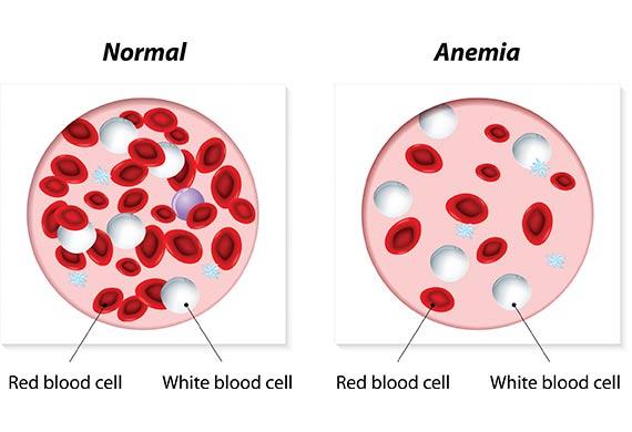 blodbrist behandling