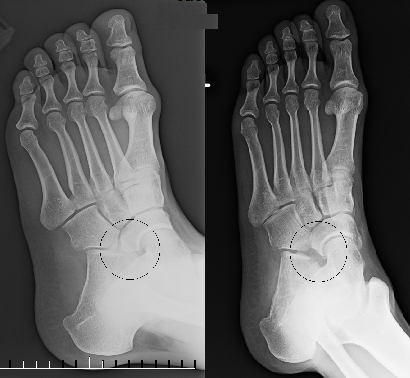 Orthotic devices can be used to help in distributing weight away from the joint and limiting motion at the joint