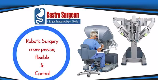 http://gastrosurgeononline.com/robotic-surgery/