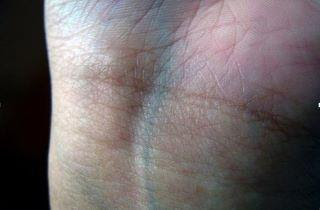 why do our veins look blue? لماذا تبدو عروقنا زرقاء؟