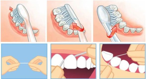Treat Your Teeth like a DENTIST: Simple Tricks to Remove Tartar, Plaque, Bacteria and Cure Bad Breath