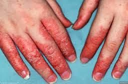 Foto obat alergi dingin apotik