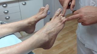 Enfermedad Strumpell Lorraine / Indicaciones terapia en casa