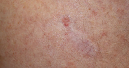 Why are these 2 types of skin cancer becoming more common in younger people?