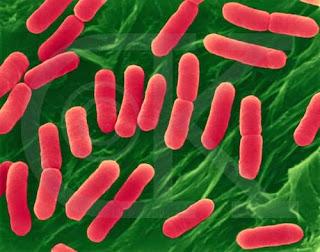 Gejala, Cara Mencegah Dan Menangani Penyakit Tifus (Tipes)